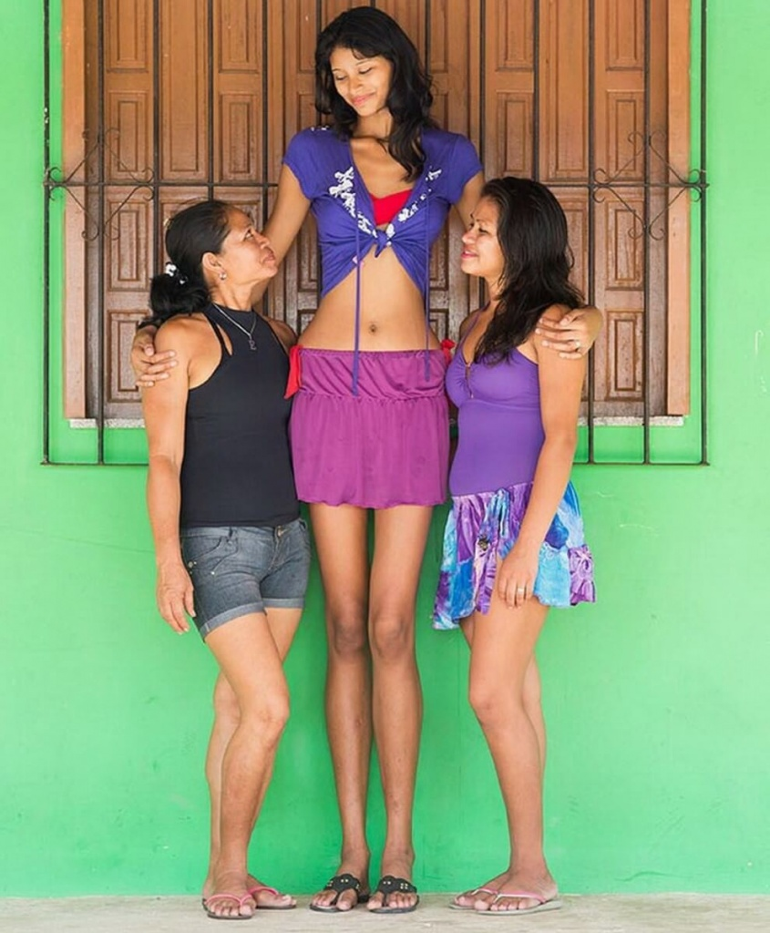 ¿Cuánto mide Elisany Silva Da Cruz? - Altura - Real height Elisany-Da-Cruz-Silva-World%E2%80%99s-Tallest-Girl-845x1024