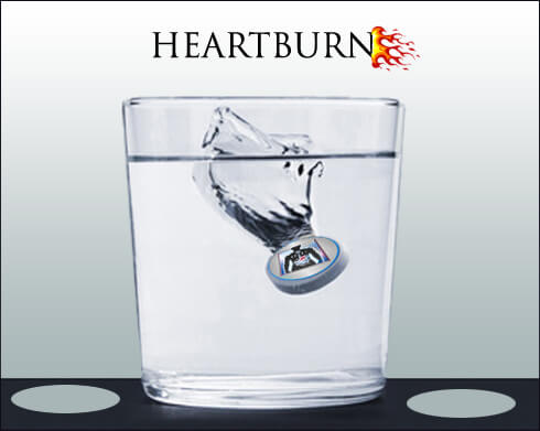 Heartburn Causes reasons