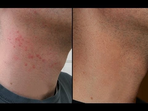 How To Get Rid Of Razor Bumps On Neck