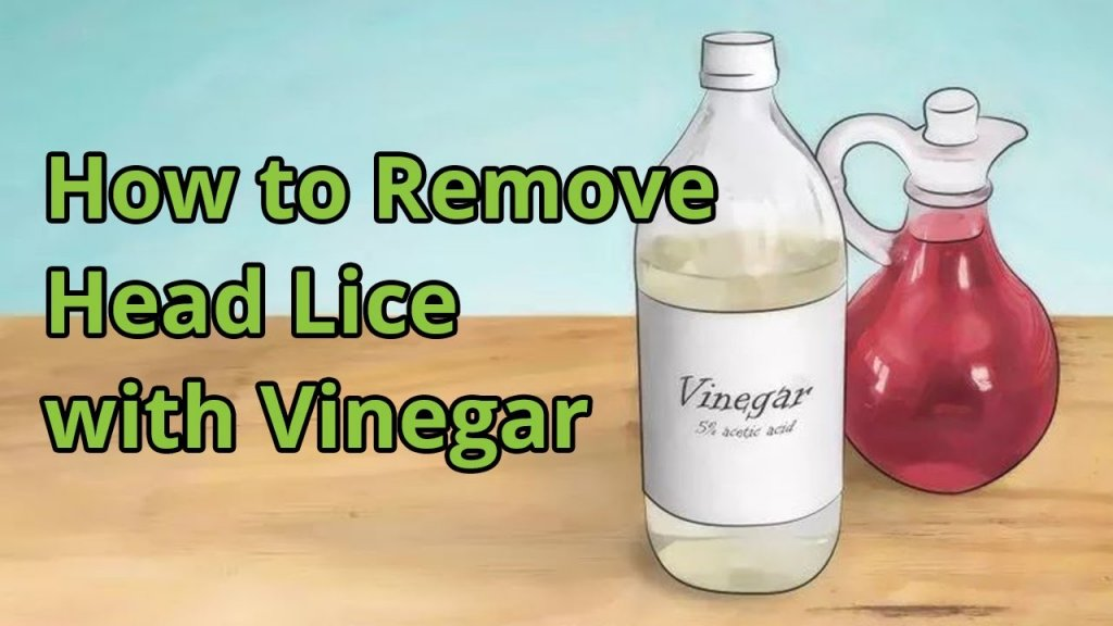 How to Get Rid of head Lice by vinegar
