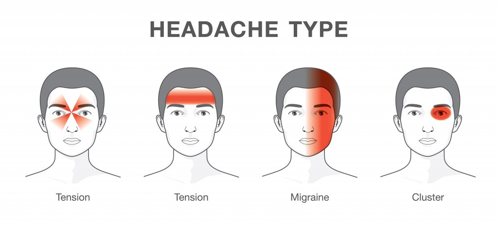 Different types of headache