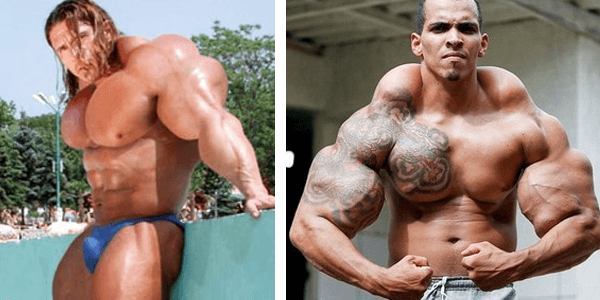The Consequences of Synthol: Is it Worth Trying?