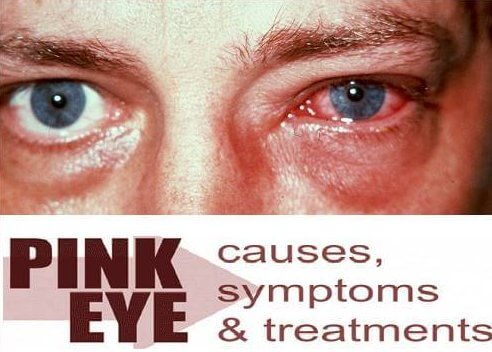 Pink Eye Conjunctivitis Treatment 15 Natural Home