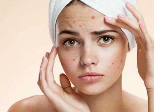 How To Get Rid Of Pimples or acne fast