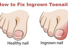 how to get rid of ingrown toenail