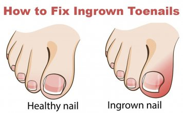 how to get rid of ingrown toenail