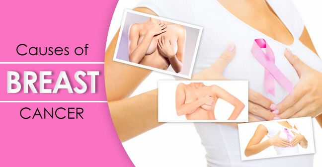 Causes of Breast cancer