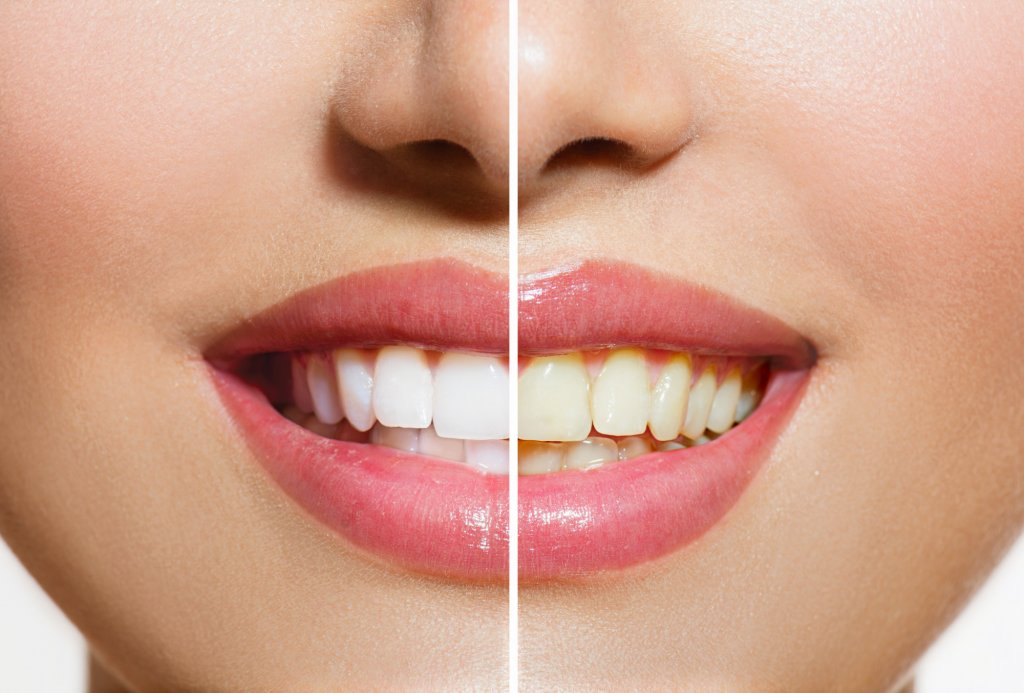 In Office vs At-Home Whitening Your Best and Brightest Smile Awaits