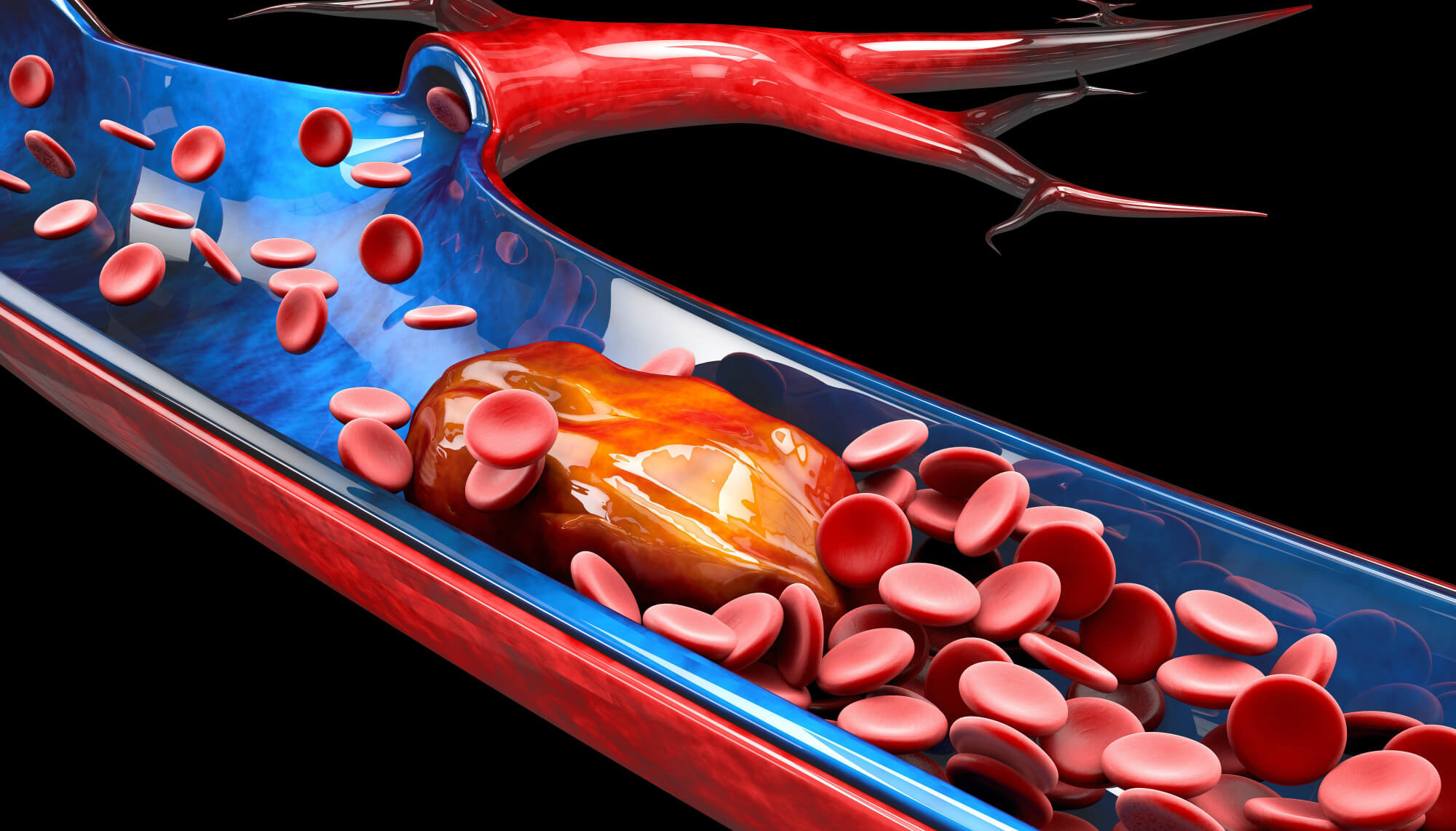 Keep it Flowing The Top Must-Know Tips to Prevent Blood Clots
