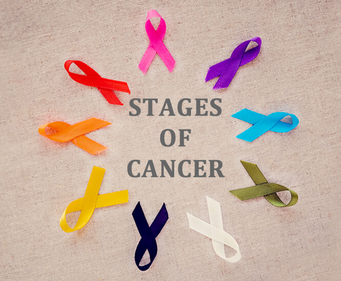 Stages- of- cancer