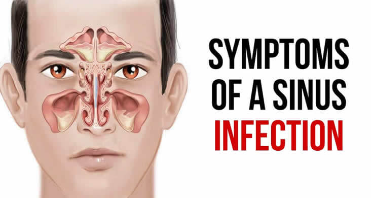 Symptoms of -Sinus-Infection
