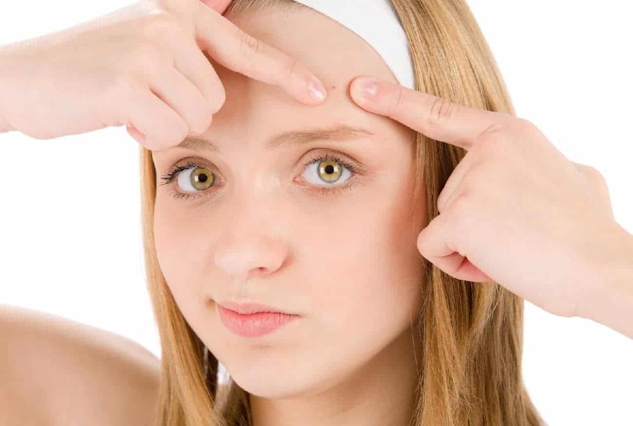 How To Get Rid Of Spots On Forehead