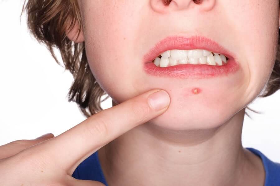 How To Get Rid Of Spots On chin