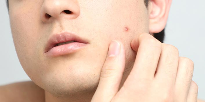 How To Get Rid Of Spots On face