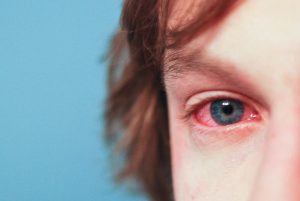 Redness in eyes
